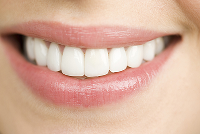 Close up of a women's smile with porcelain Crowns from Metropolitan Dental Specialty Group