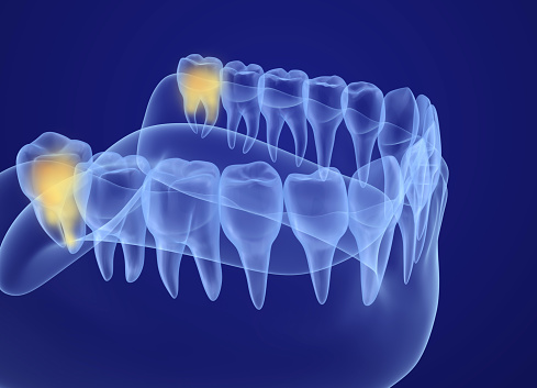 X-ray highlighting wisdom teeth from Metropolitan Dental Specialty Group in Silver Spring, MD