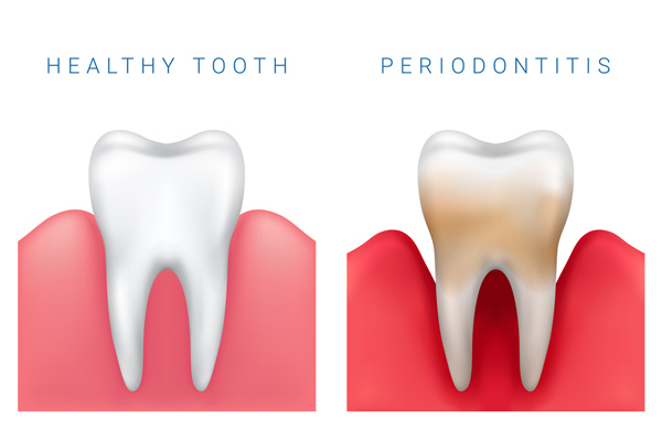 Illustration of healthy tooth and gum disease from Metropolitan Dental Specialty Group in Silver Spring, MD