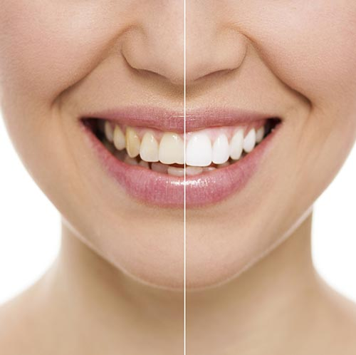 Close up of women's teeth before and after teeth whitening at Metropolitan Dental Specialty Group